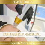 Ekspert poleca: Radiofrekwencja mikroigłowa.