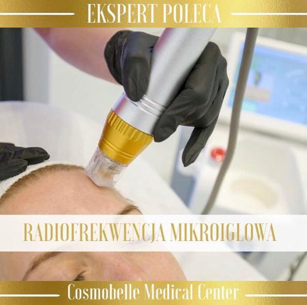 Radiofrekwencja mikroigłowa usuwa blizny potrądzikowe i rozstępy.
