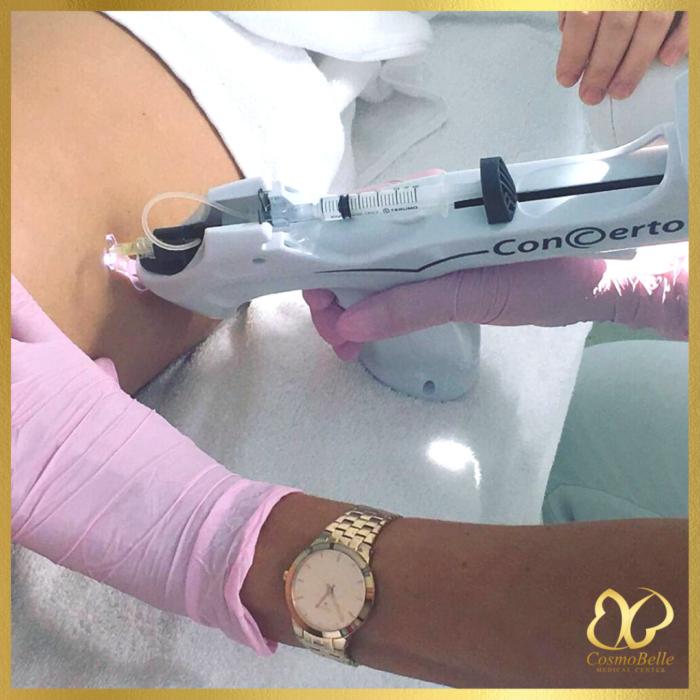 Karboksyterapia to najlepsza metoda spłycania blizn i naturalnej stymulacji odnowy skóry.