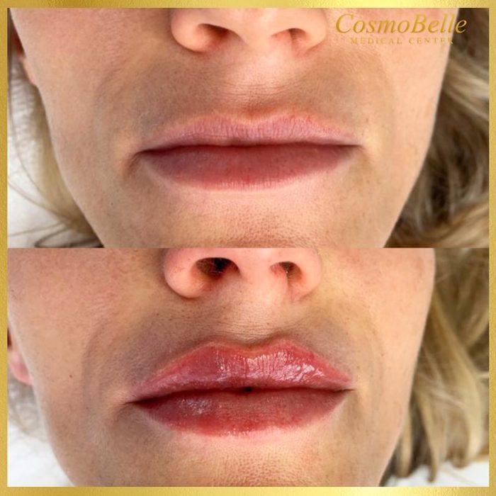 Wypełnianie ust kwasem hialuronowym w CosmoBelle Medical Center.