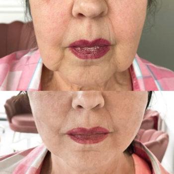 Natychmiastowy lifting twarzy nićmi ze stymulatorem tkankowym.