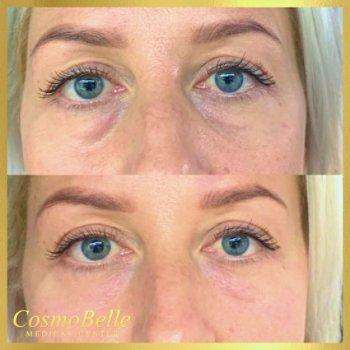 Stymulatory tkankowe, szybkie usuwanie cieni pod oczami.