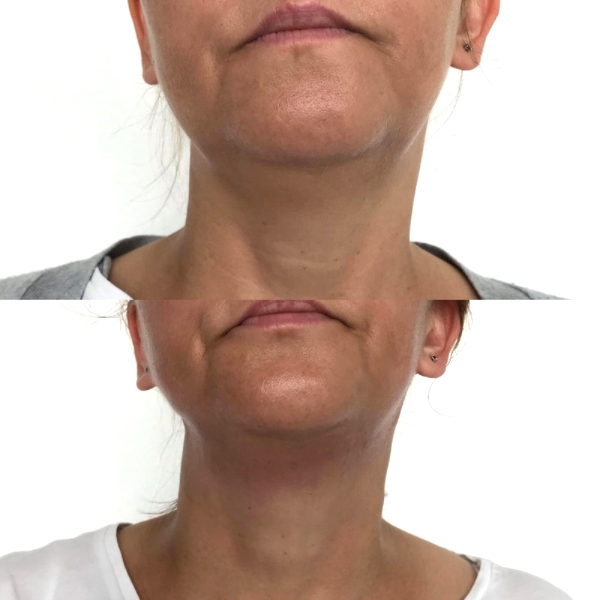 Termolifting 5d to szybki lifting i poprawa owalu twarzy.